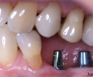Useful Tips for dental implants care