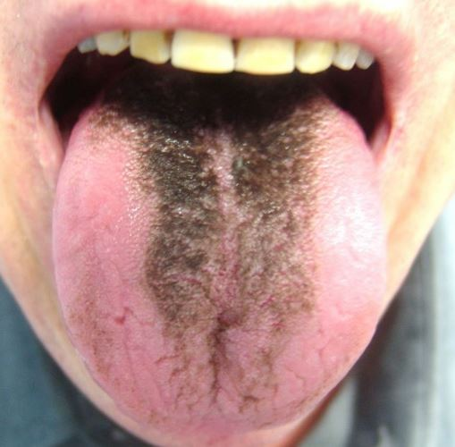 Color Changes on Tongue to Orange, Black, Red, White ...